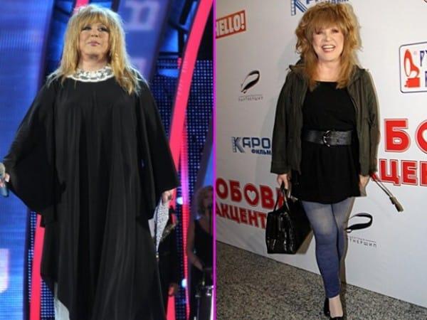 алла пугачева до и после
