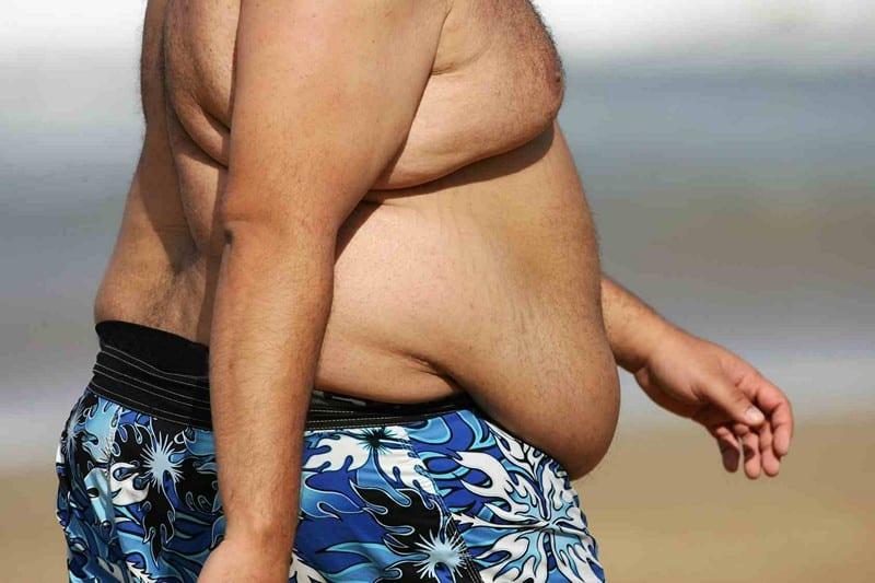 как убрать жир щек мужчине