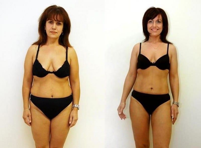 тумесцентная липосакция фото до и после