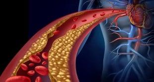 Как очистить организм от холестерина