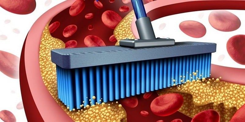 Чем почистить сосуды в организме