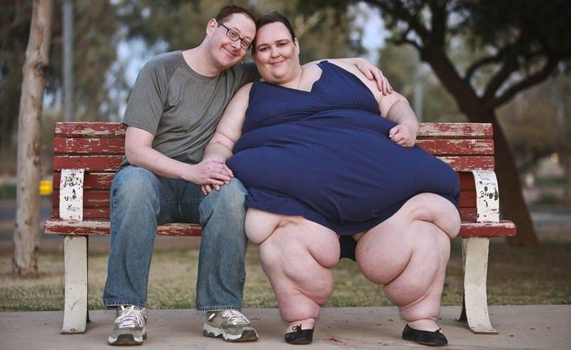 ожирение 4 степень