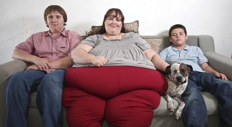 ожирение 3 степень