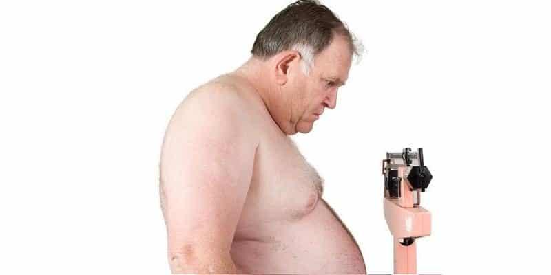 Ожирение у мужчин