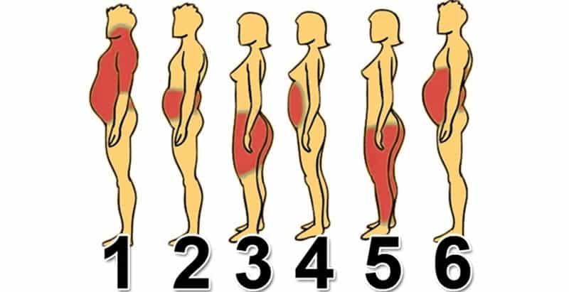 Ожирение у женщин типы