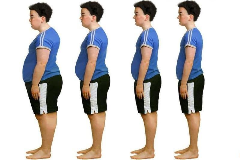 Ожирение у детей класификация