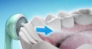 Ирригатор полости рта, обзор лучших моделей